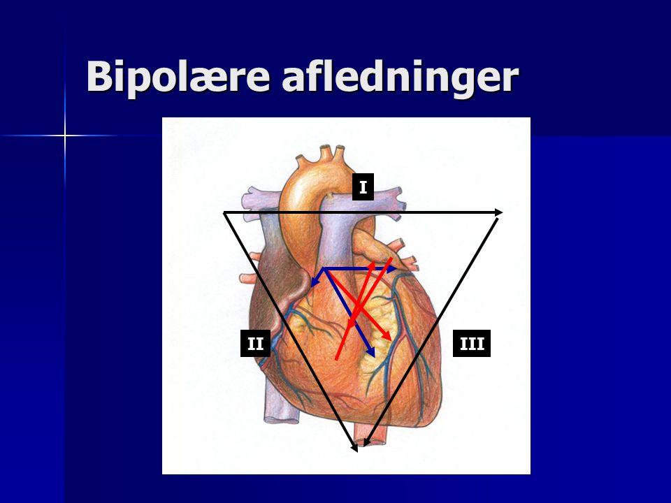 Bipolære afledninger I II III