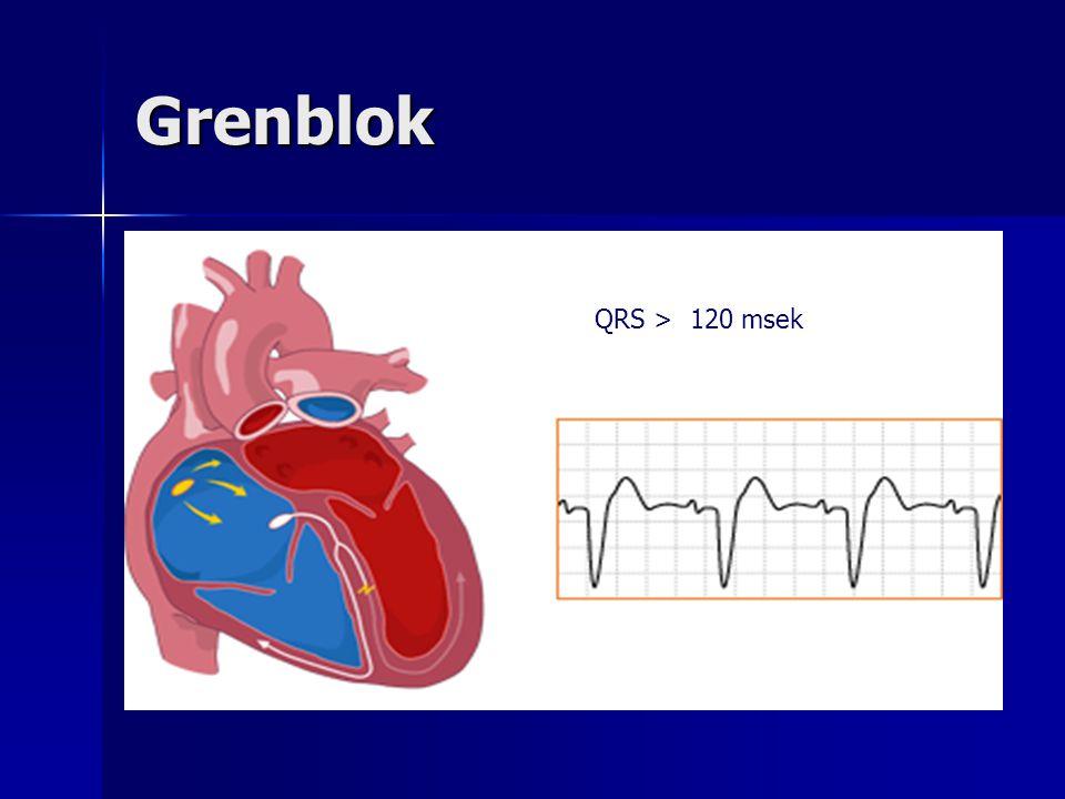 Grenblok QRS > 120 msek.