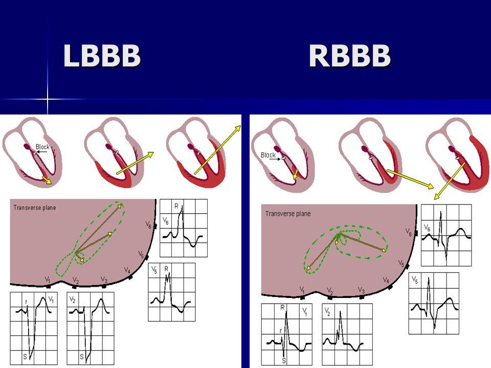 LBBB RBBB