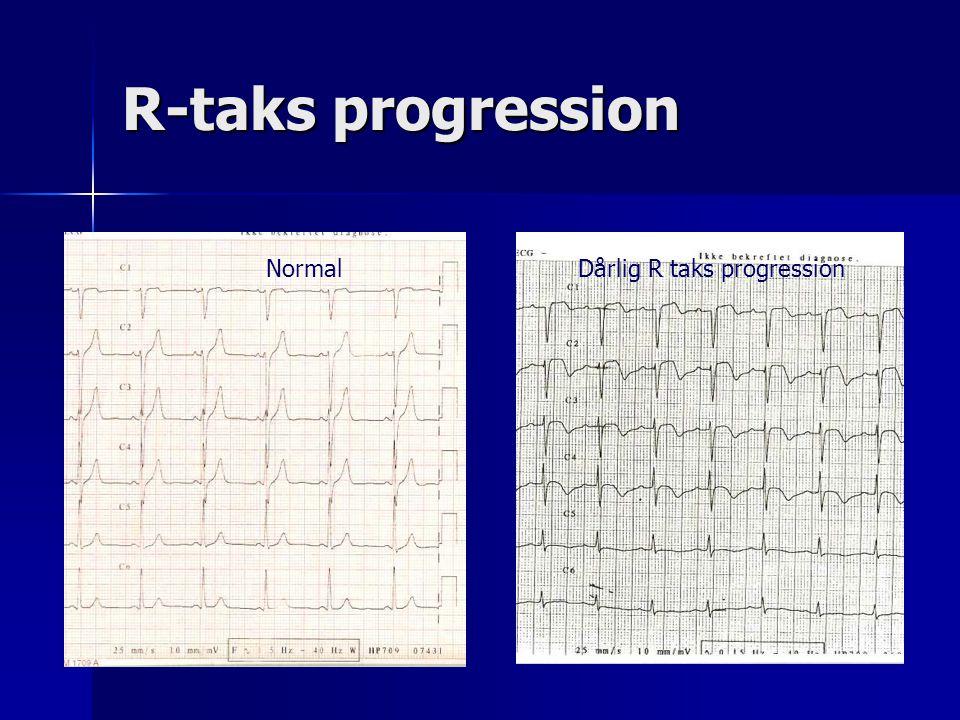 R-taks progression Normal Dårlig R taks progression