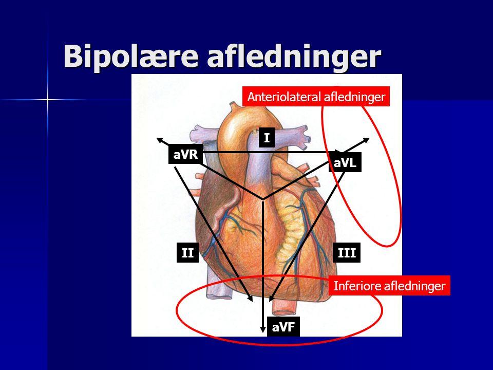 Bipolære afledninger Anteriolateral afledninger I aVR aVL II III