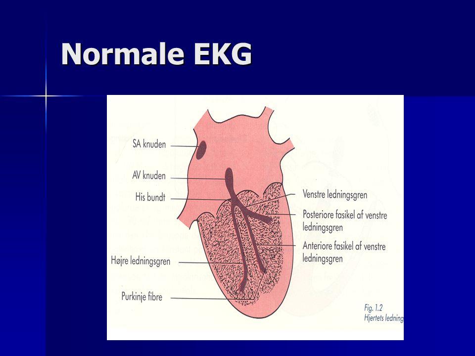 Normale EKG