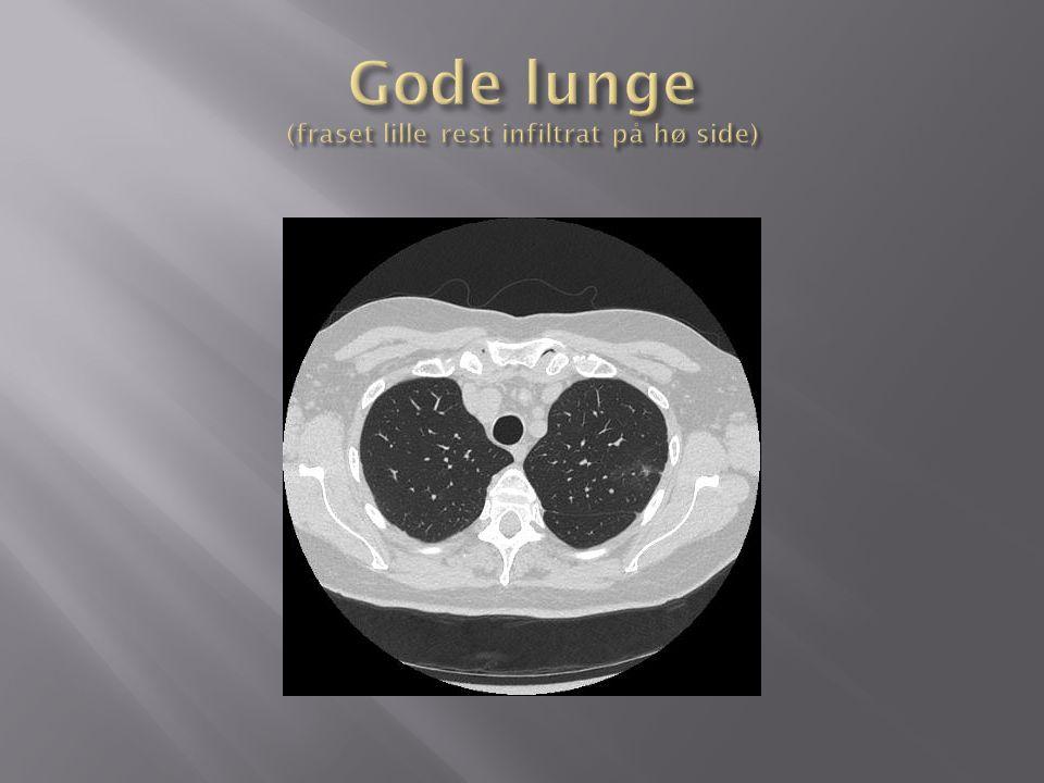 Gode lunge (fraset lille rest infiltrat på hø side)