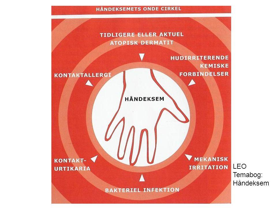 LEO Temabog: Håndeksem