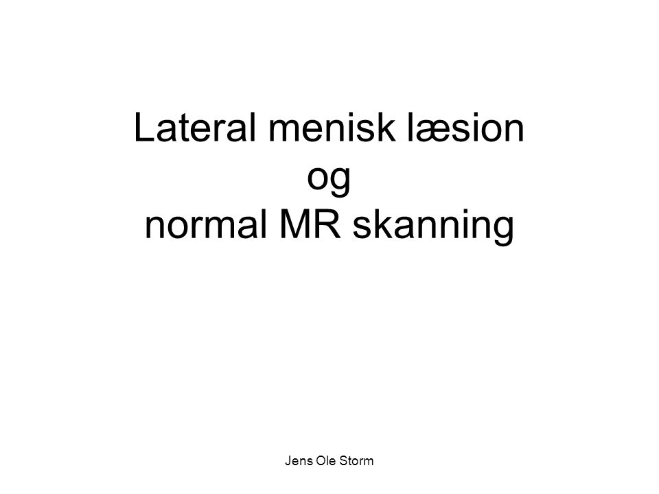 Lateral menisk læsion og normal MR skanning