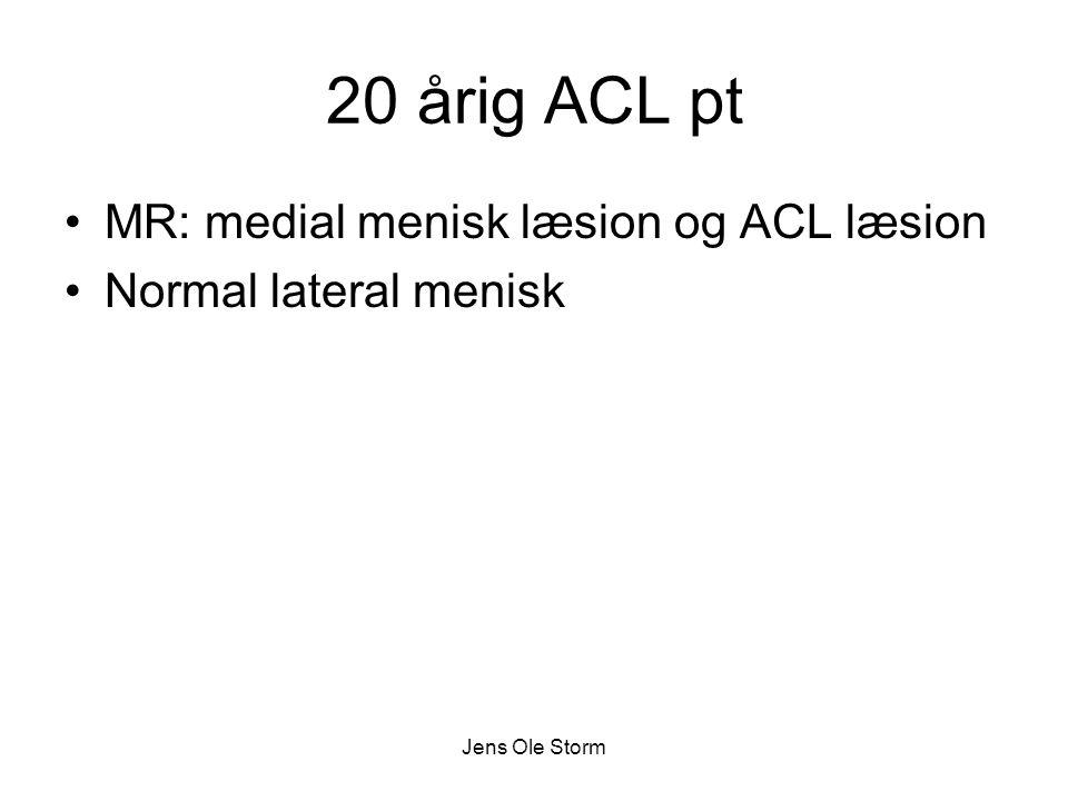 20 årig ACL pt MR: medial menisk læsion og ACL læsion