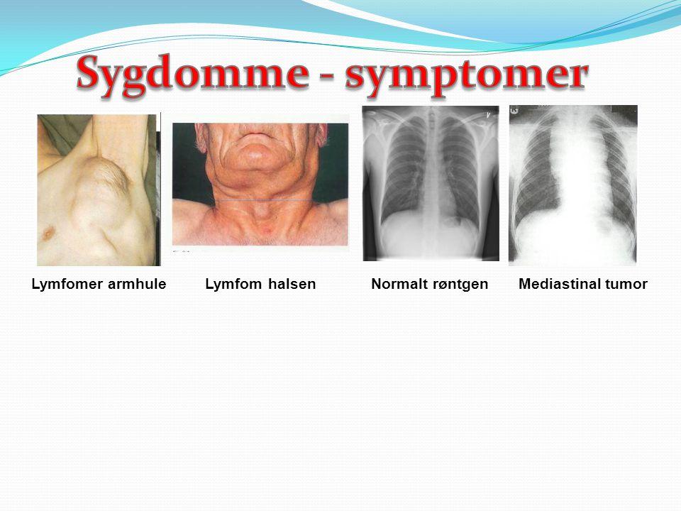 Sygdomme - symptomer Lymfomer armhule Lymfom halsen Normalt røntgen Mediastinal tumor.