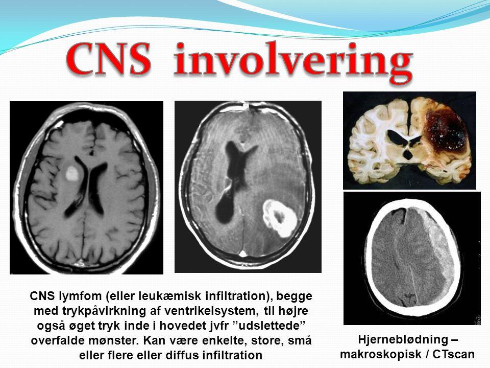 Hjerneblødning – makroskopisk / CTscan