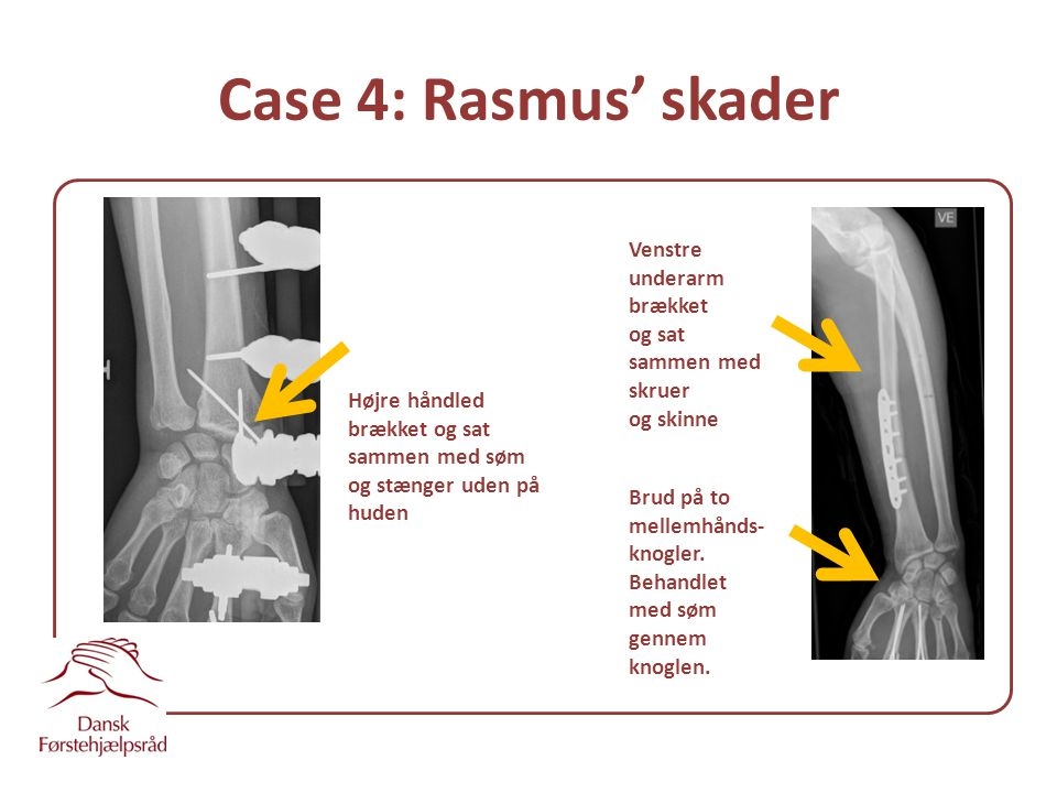 Case 4: Rasmus' skader Venstre underarm brækket