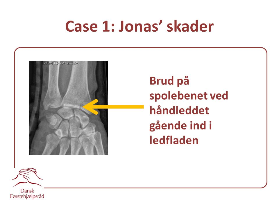 Case 1: Jonas' skader Brud på spolebenet ved håndleddet gående ind i ledfladen