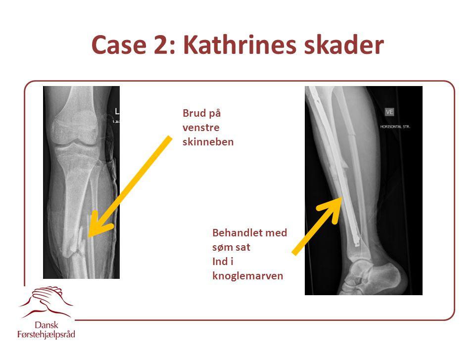 Case 2: Kathrines skader