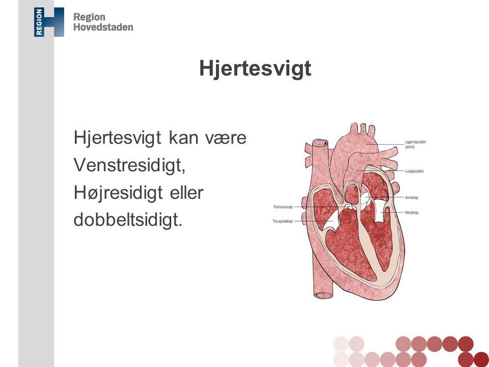 Hjertesvigt Hjertesvigt kan være Venstresidigt, Højresidigt eller dobbeltsidigt. Væske i lungerne kan forekomme ved venstresidigt hjertesvigt.
