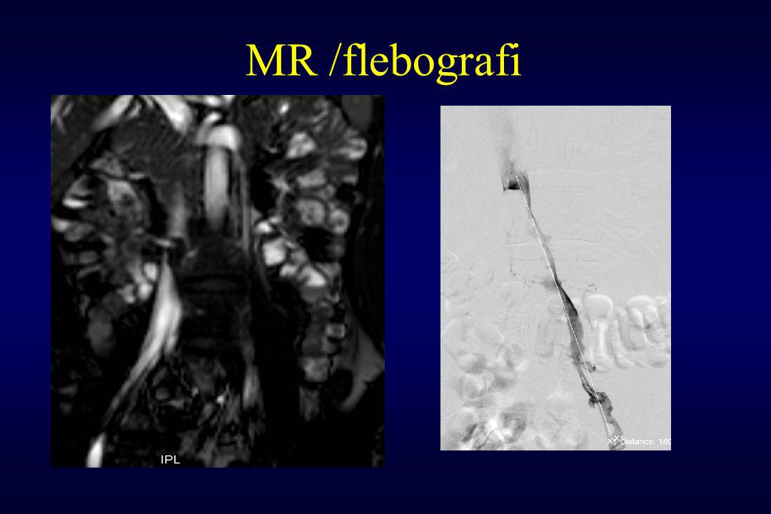 MR /flebografi