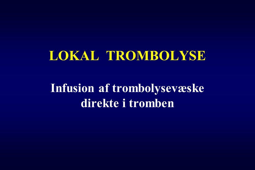 LOKAL TROMBOLYSE Infusion af trombolysevæske direkte i tromben