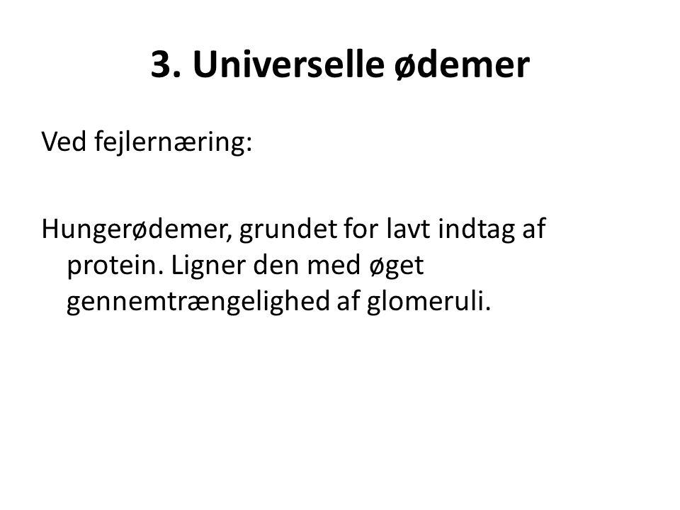 3. Universelle ødemer Ved fejlernæring: Hungerødemer, grundet for lavt indtag af protein.