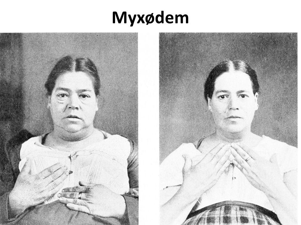 Myxødem