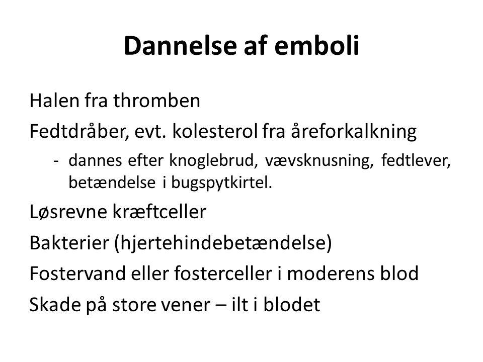 Dannelse af emboli Halen fra thromben