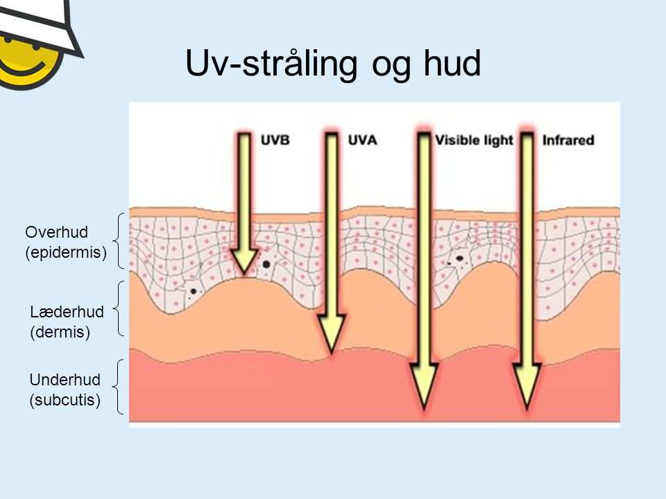 Uv-stråling og hud Overhud (epidermis) Læderhud (dermis) Underhud