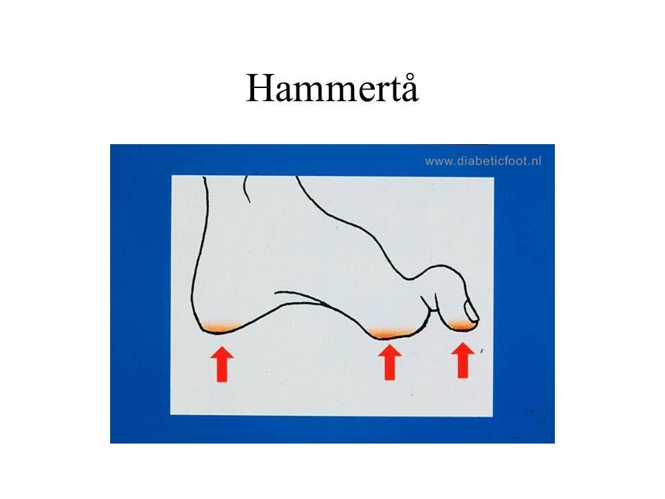 Hammertå