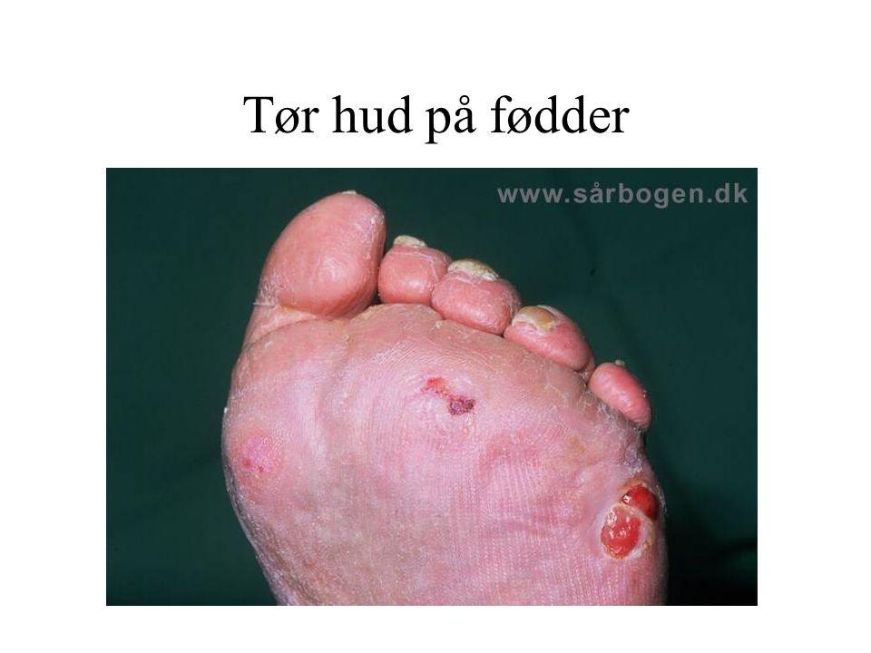 Tør hud på fødder