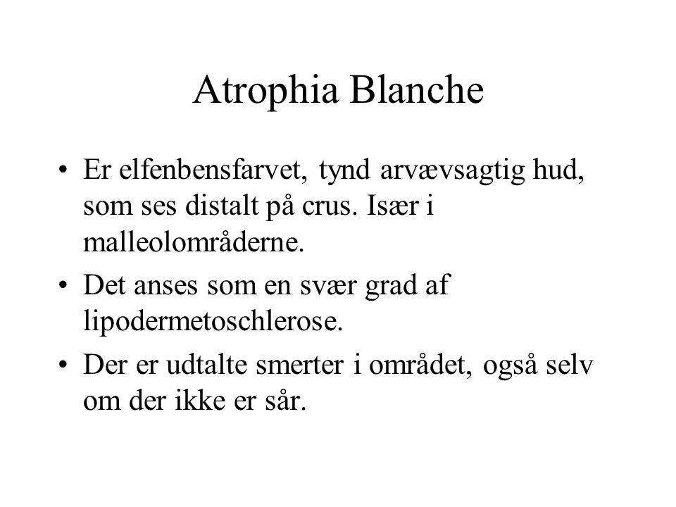 Atrophia Blanche Er elfenbensfarvet, tynd arvævsagtig hud, som ses distalt på crus. Især i malleolområderne.