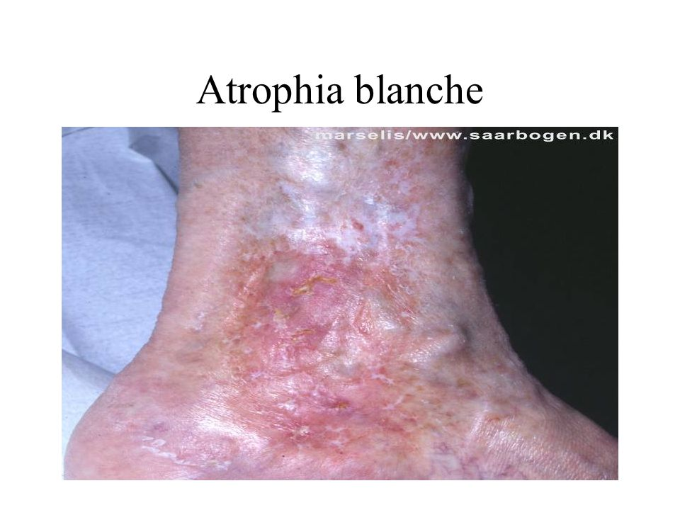 Atrophia blanche