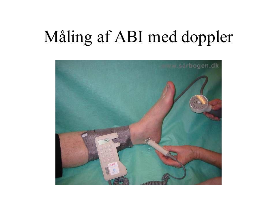 Måling af ABI med doppler