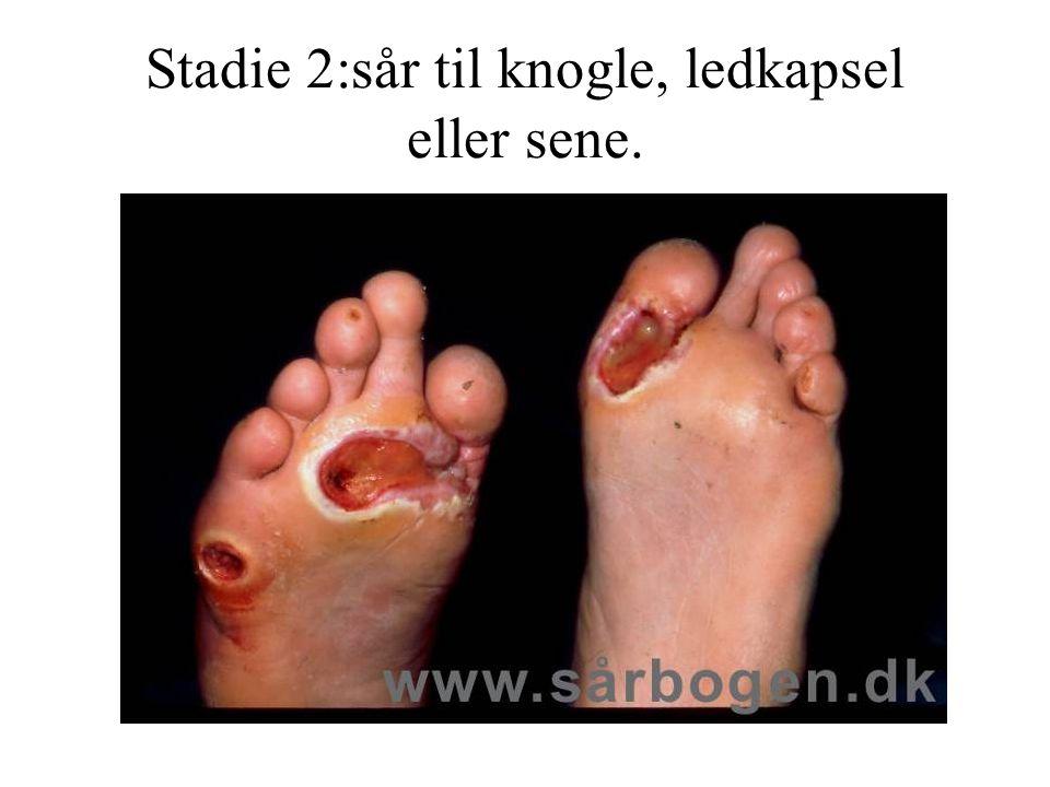 Stadie 2:sår til knogle, ledkapsel eller sene.