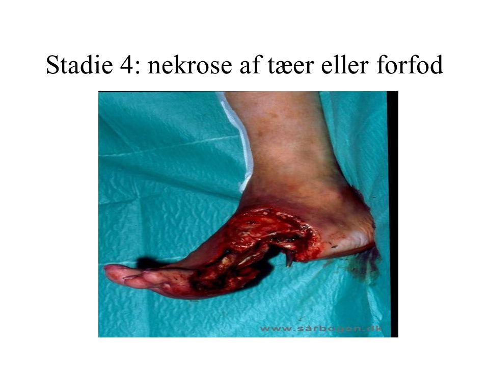 Stadie 4: nekrose af tæer eller forfod