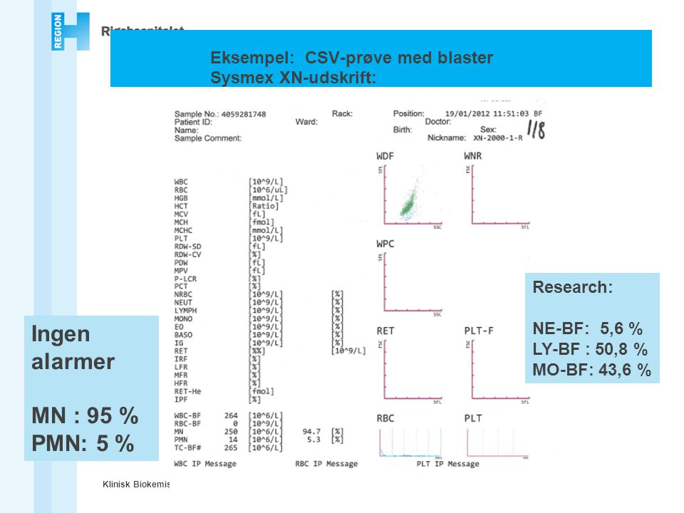 Eksempel: CSV-prøve med blaster Sysmex XN-udskrift: