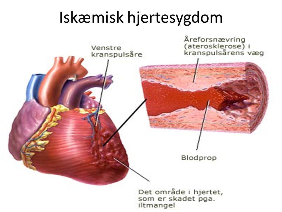 Iskæmisk hjertesygdom