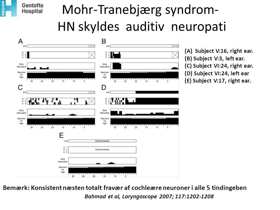 Mohr-Tranebjærg syndrom- HN skyldes auditiv neuropati