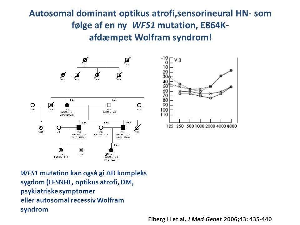 Autosomal dominant optikus atrofi,sensorineural HN- som følge af en ny WFS1 mutation, E864K- afdæmpet Wolfram syndrom!