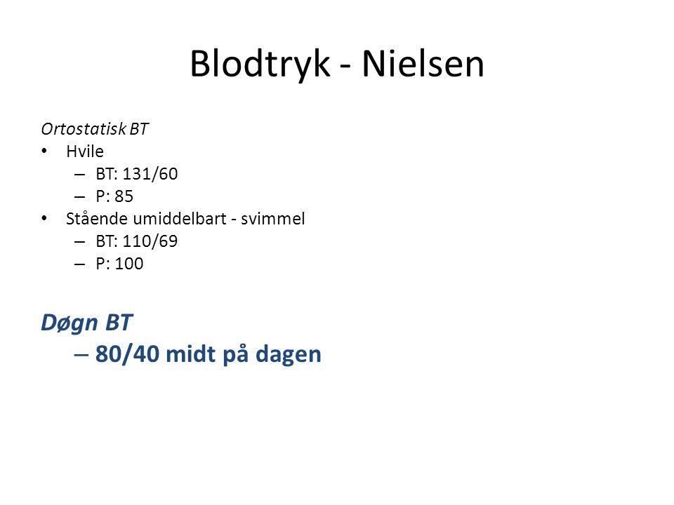 Blodtryk - Nielsen Døgn BT 80/40 midt på dagen Ortostatisk BT Hvile