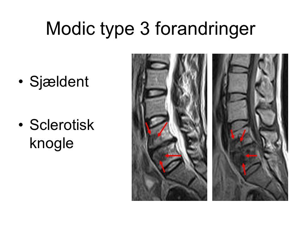 Modic type 3 forandringer