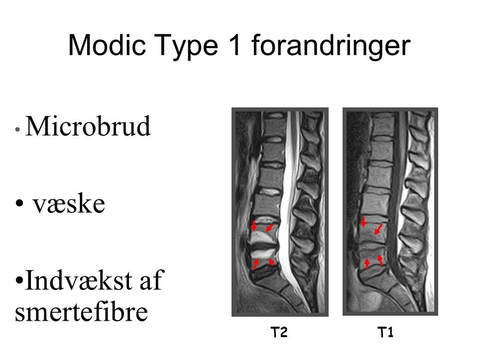 Modic Type 1 forandringer