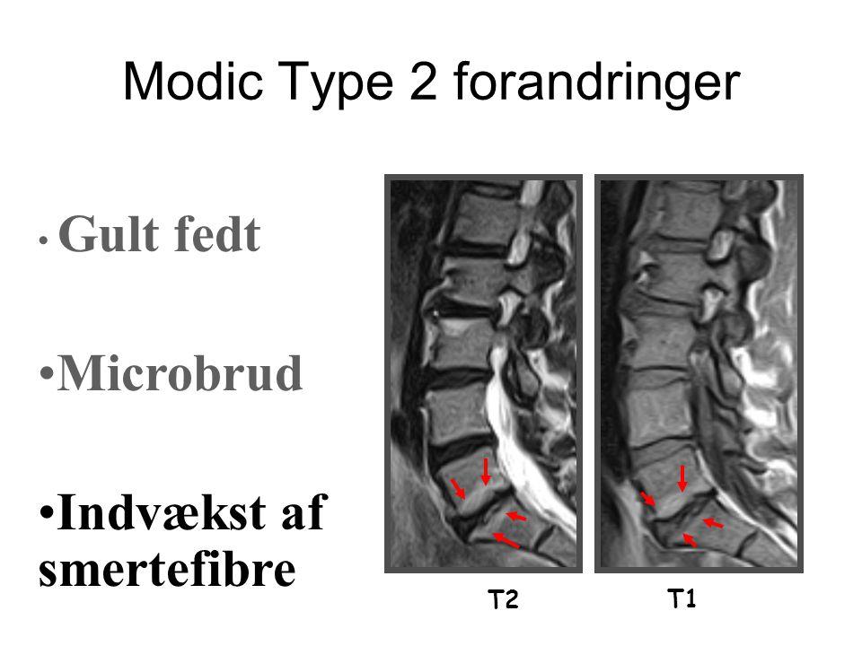 Modic Type 2 forandringer