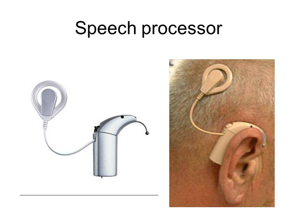 Speech processor