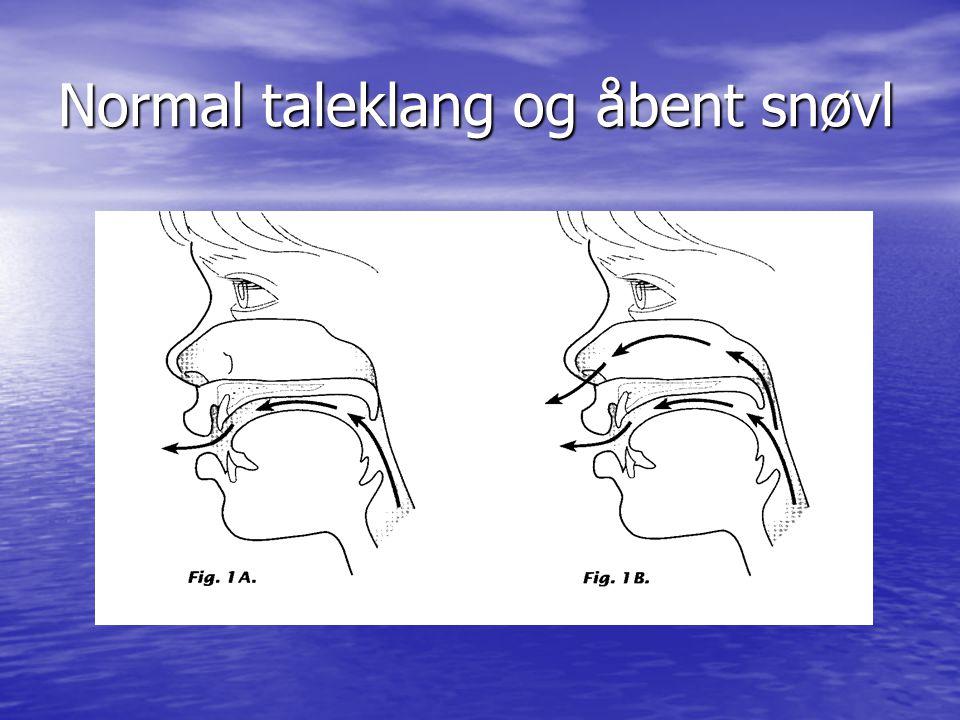 Normal taleklang og åbent snøvl