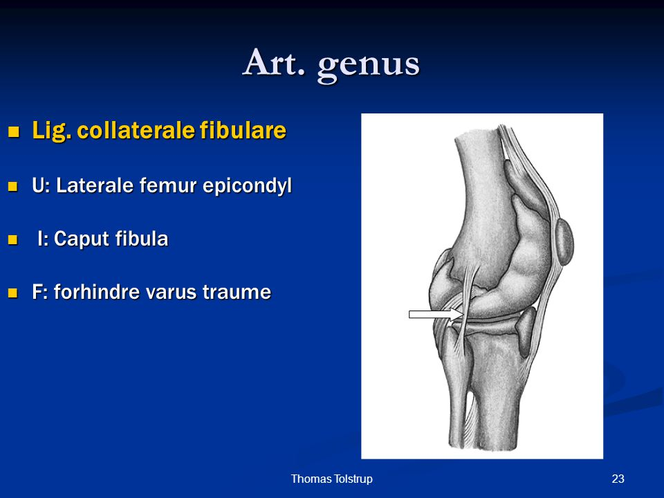 Art. genus Lig. collaterale fibulare U: Laterale femur epicondyl