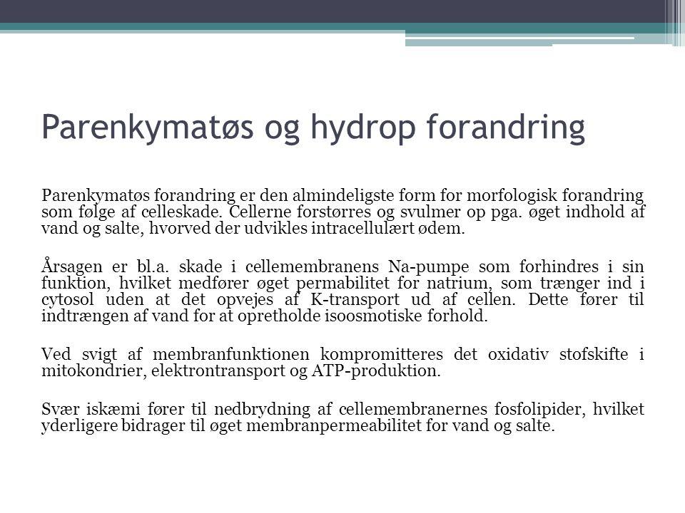 Parenkymatøs og hydrop forandring