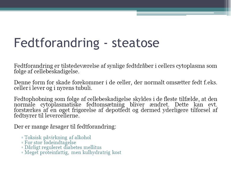 Fedtforandring - steatose