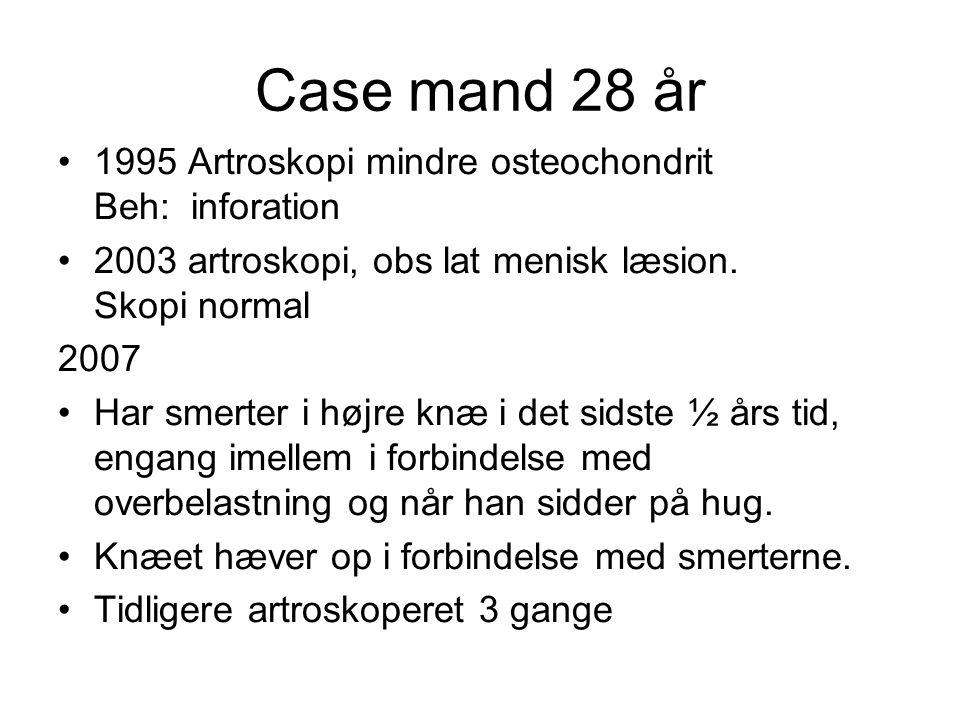 Case mand 28 år 1995 Artroskopi mindre osteochondrit Beh: inforation