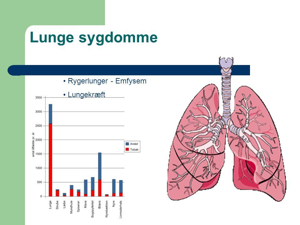 Lunge sygdomme Rygerlunger - Emfysem Lungekræft