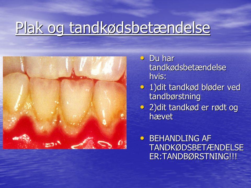 Plak og tandkødsbetændelse