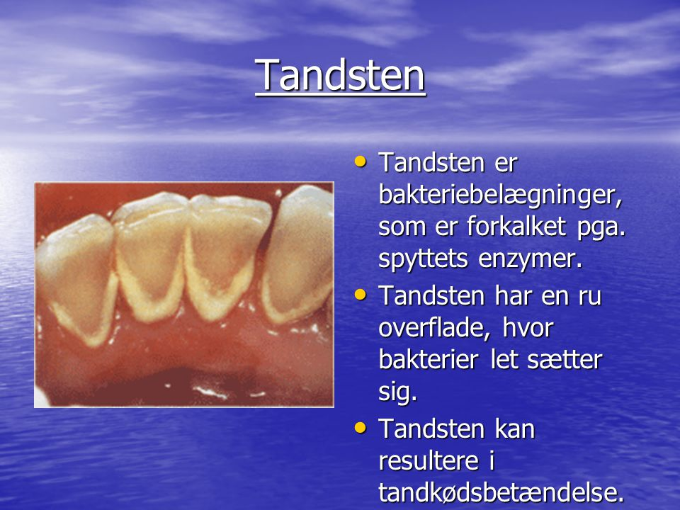 Tandsten Tandsten er bakteriebelægninger, som er forkalket pga. spyttets enzymer. Tandsten har en ru overflade, hvor bakterier let sætter sig.