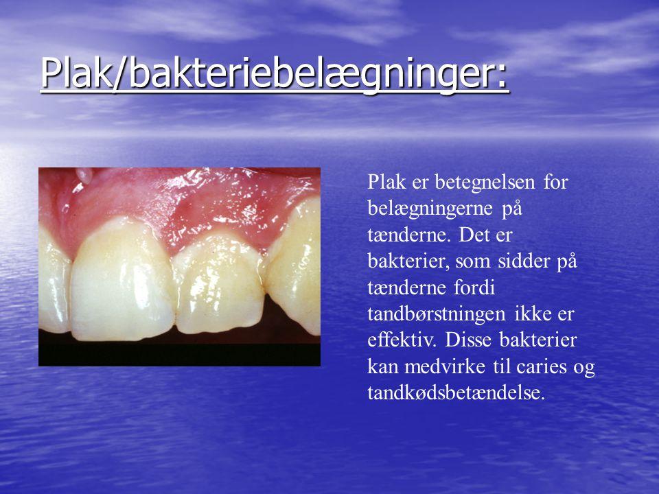 Plak/bakteriebelægninger: