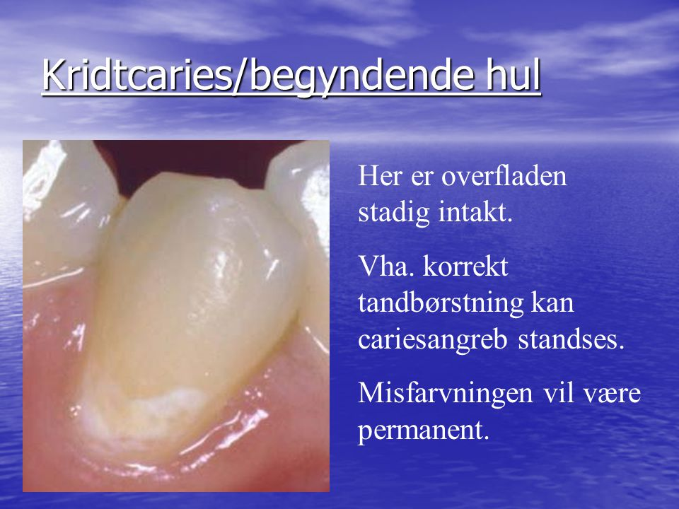 Kridtcaries/begyndende hul