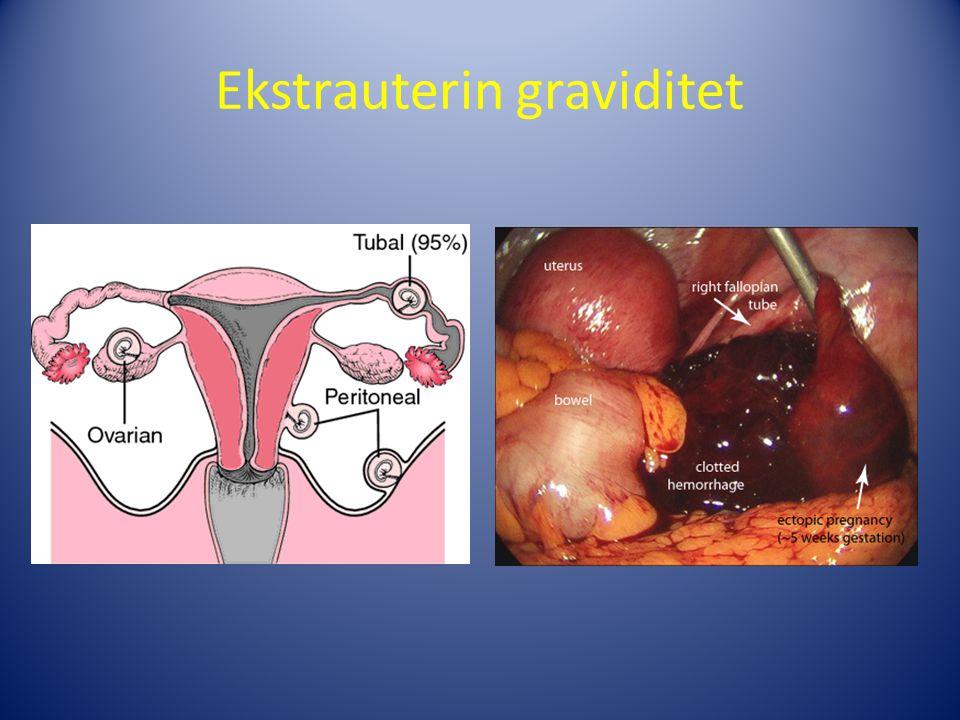 Ekstrauterin graviditet