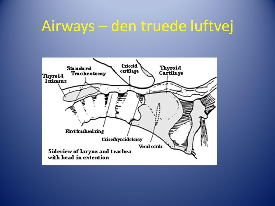 Airways – den truede luftvej